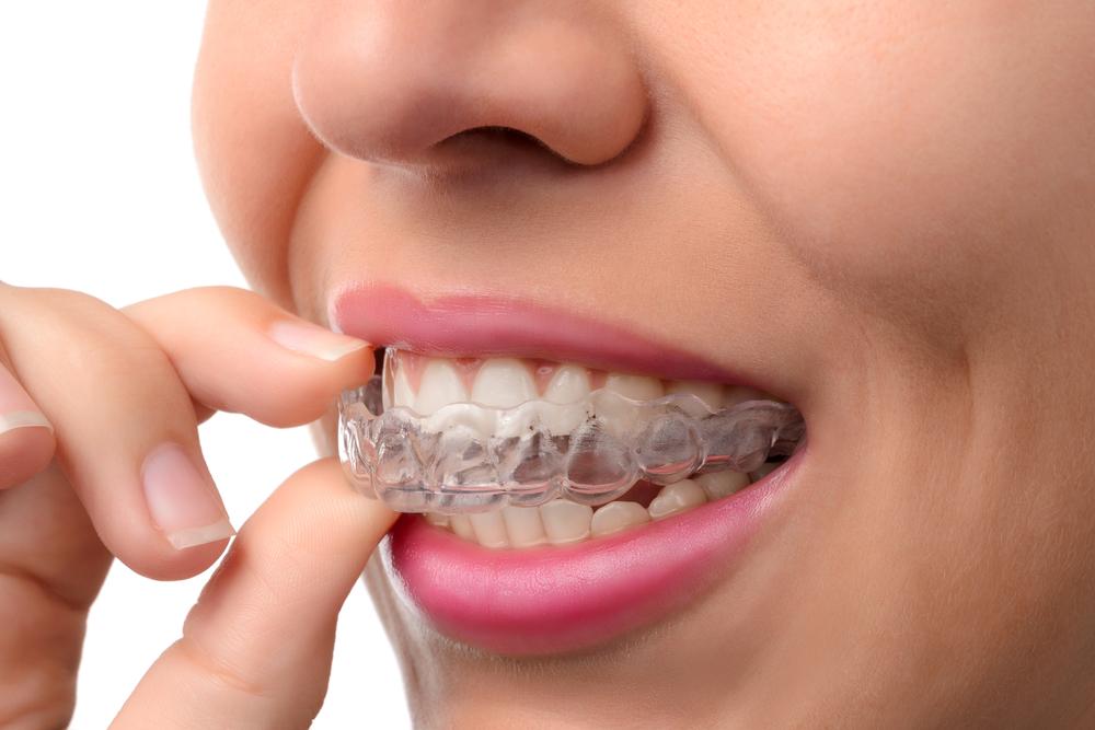Kvinde tager en bøjle på tænderne